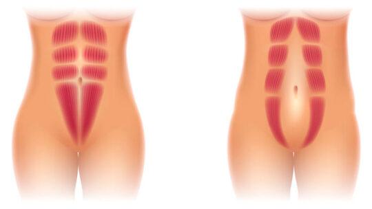 Delte mavemuskler sker på mange måder